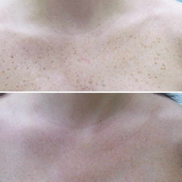 before-after-skin-treatments-4
