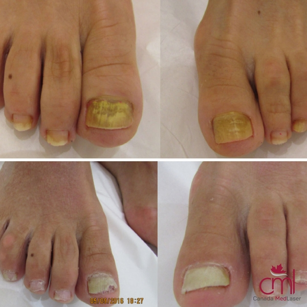 before-after-nail-fungus-2