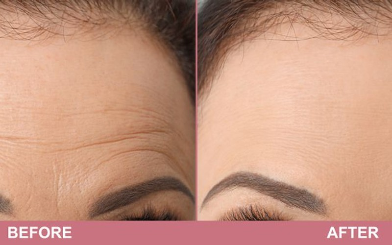 treatment for forehead wrinkles