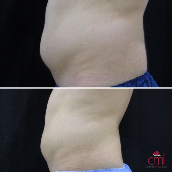 before-after-coolsculpting-3