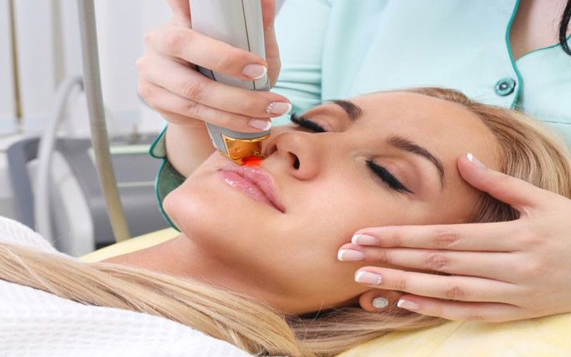Best Treatment for Facial Hair Removal in Vaughan