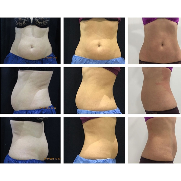 before-after-coolsculpting-1