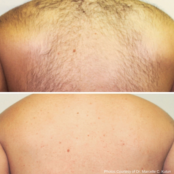 before-after-laser-hair-removal-1