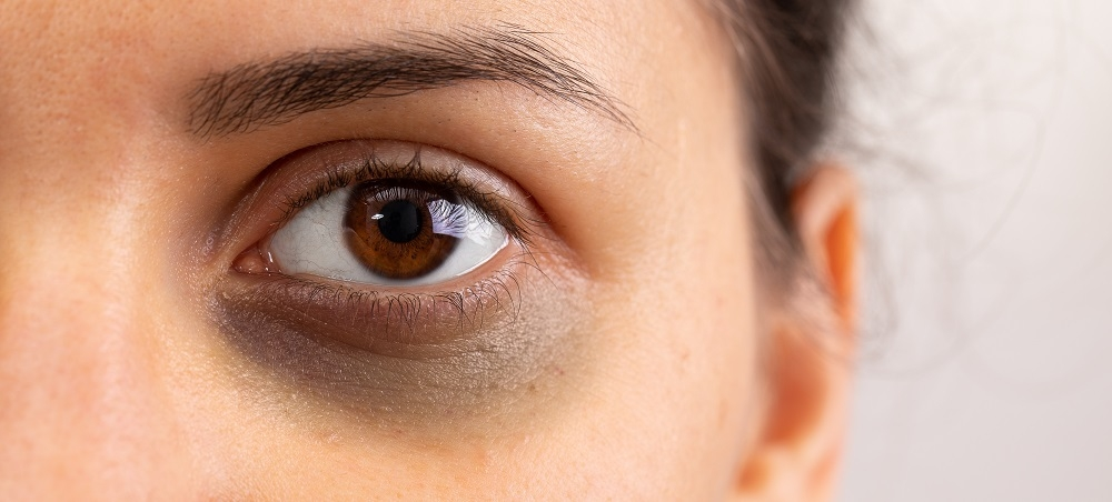 How to Get Rid of Dark Circles and Under Eye Bags ...