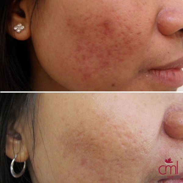 before-after-acne-3