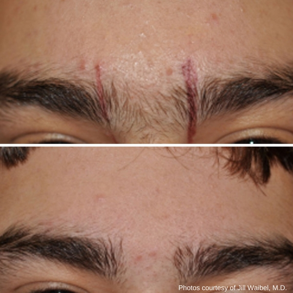 before-after-laser-hair-removal-2