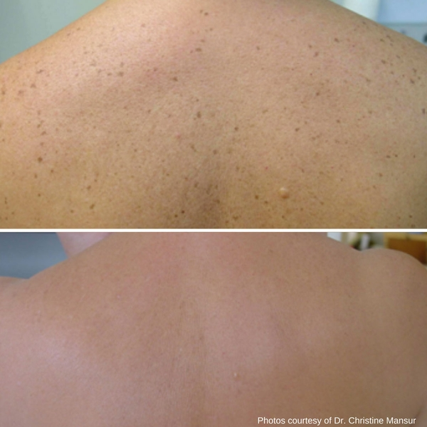 before-after-skin-treatments-5