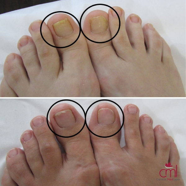 before-after-nail-fungus-1
