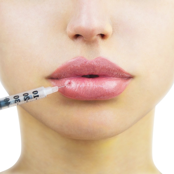 Gen Z And Millenials – Major Lip Injections Enthusiasts